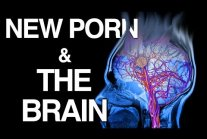 WHY Porn Changes the Brain | Science of NoFap