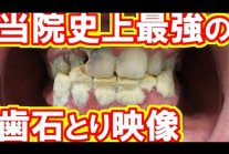 Very heavy tartar removal.This patient was Dental treatment phobia.